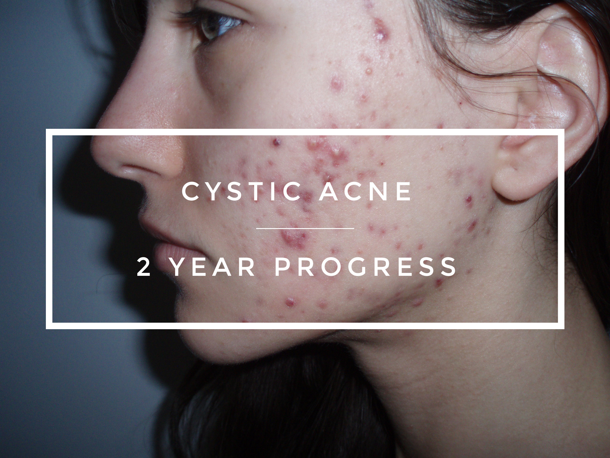 How I Cured My Cystic Acne Update: 1 Year After Probiotics